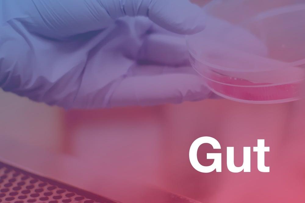 revista cientifica Gut